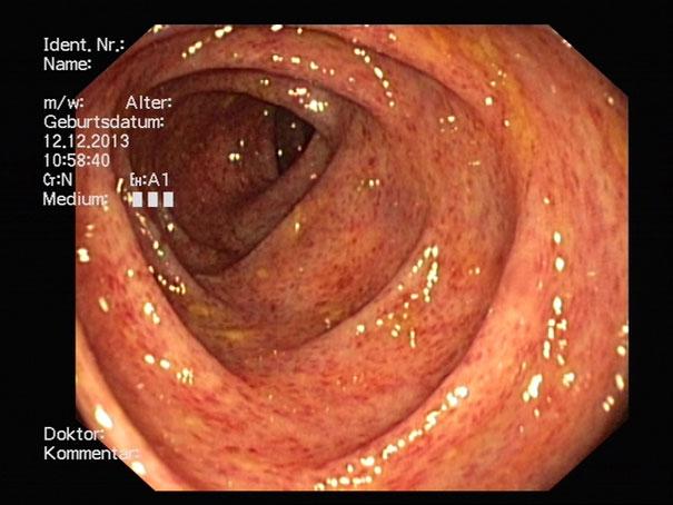 Gastroenterologie Krankheitsbilder Praxis Für Innere Medizin In